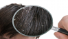 How Should Be Dandruff Treated